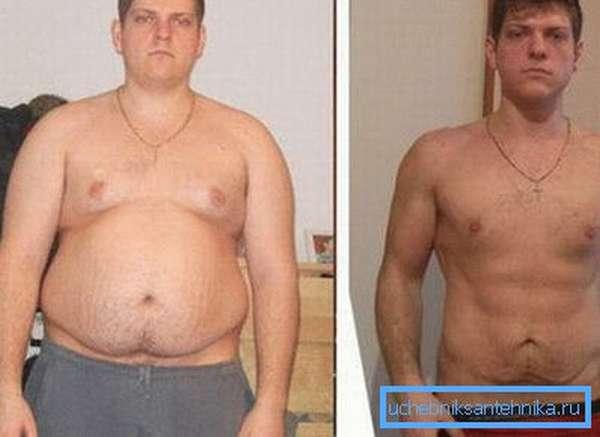 Процедуры полезны при ожирении.